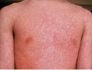 色はあざやかで強い赤みが特徴です。 (写真) 発疹の大きさは数㎜~1㎝程度とさまざまで、わずかにもり上がった感じになっています。 となりあう発疹と発疹が癒合する
