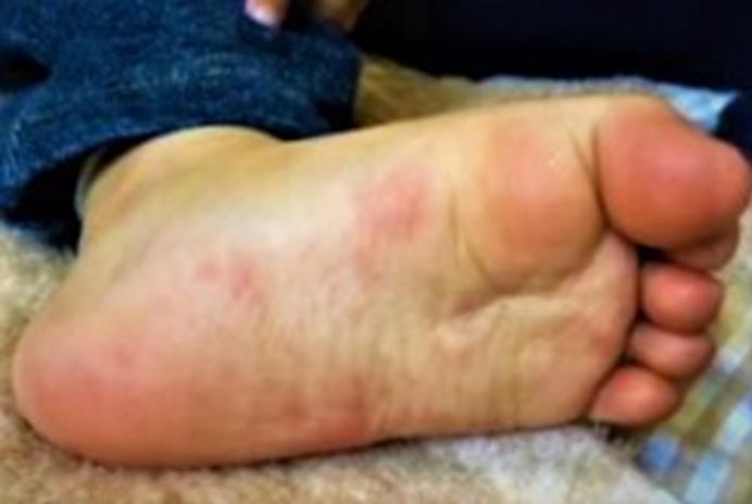 ぶつぶつ 子供 足